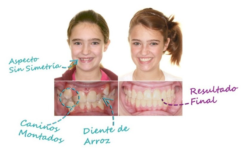 antes y despues de frenillos dentales
