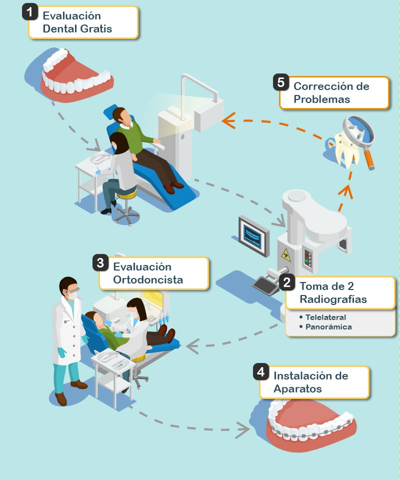 Pasos para Instalarse Frenillos Dentales