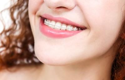 ceramic-braces-400