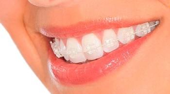 ortodoncia-brackets-esteticos-transparentes-zafiro-350