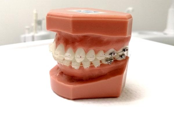 frenillos-ceramicos-clinica-dental-amanda