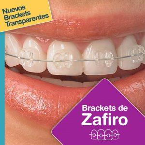 Brackets Dentales de Zafiro: La manera más discreta de lograr una linda sonrisa.