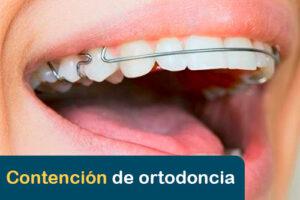 destacada contención de ortodoncia
