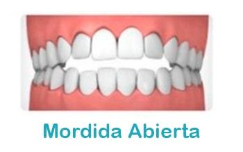 Mordida-abierta-ortodoncia-min