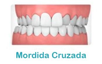 Mordida-cruzada-ortodoncia-min