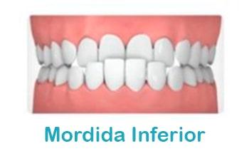 Mordida-inferior-ortodoncia-min