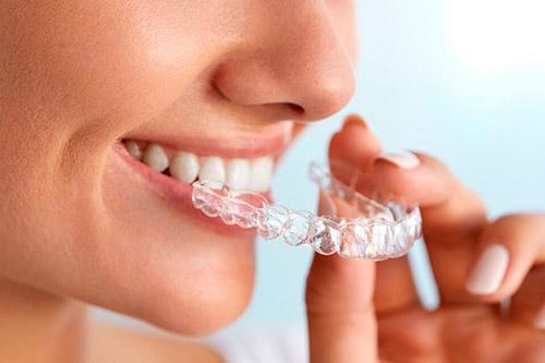ortodoncia-invisible-invisaling