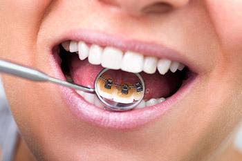 ortodoncia-lingual-que-es