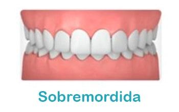sobremordida-ortodoncia-min