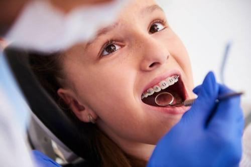 tratamiento renillos dentales