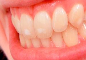 caso-hipoplasia-dental