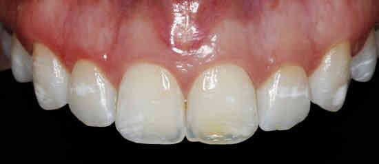 manchas-blancan-en-los-dientes
